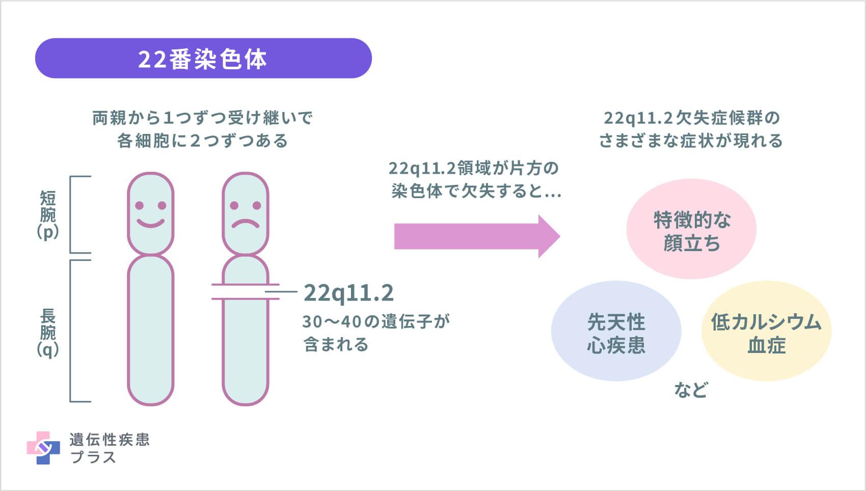 58 22q11.2ds 染色体欠失