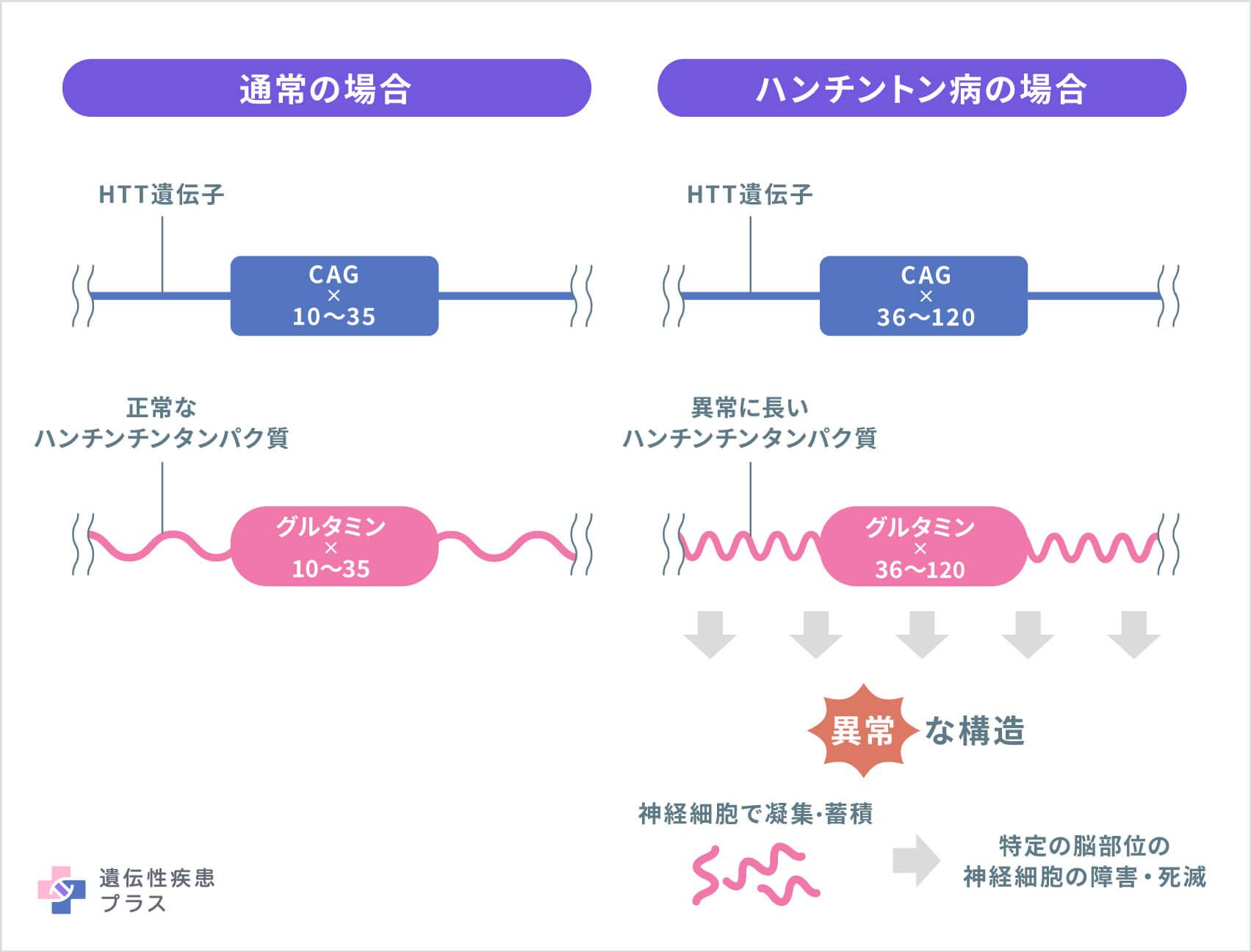 ハンチントン病 - 遺伝性疾患プラス