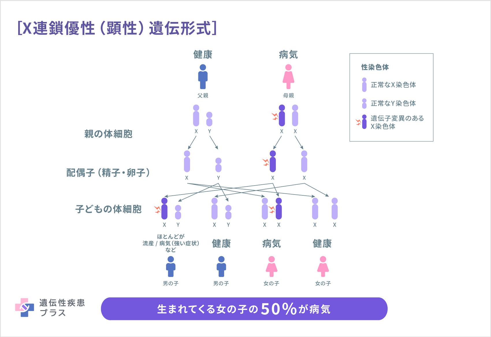 X Linked Dominant Inheritance