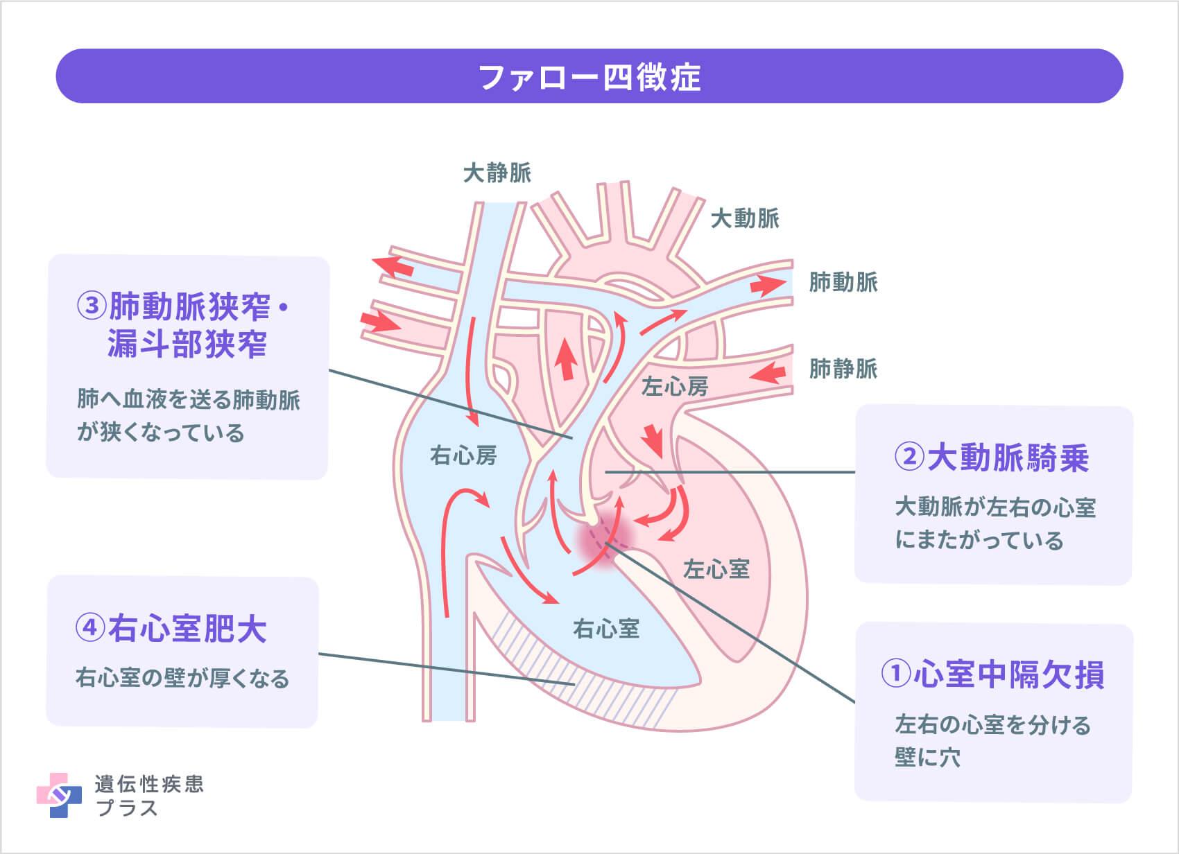 22q11.2ds ファロー四徴症