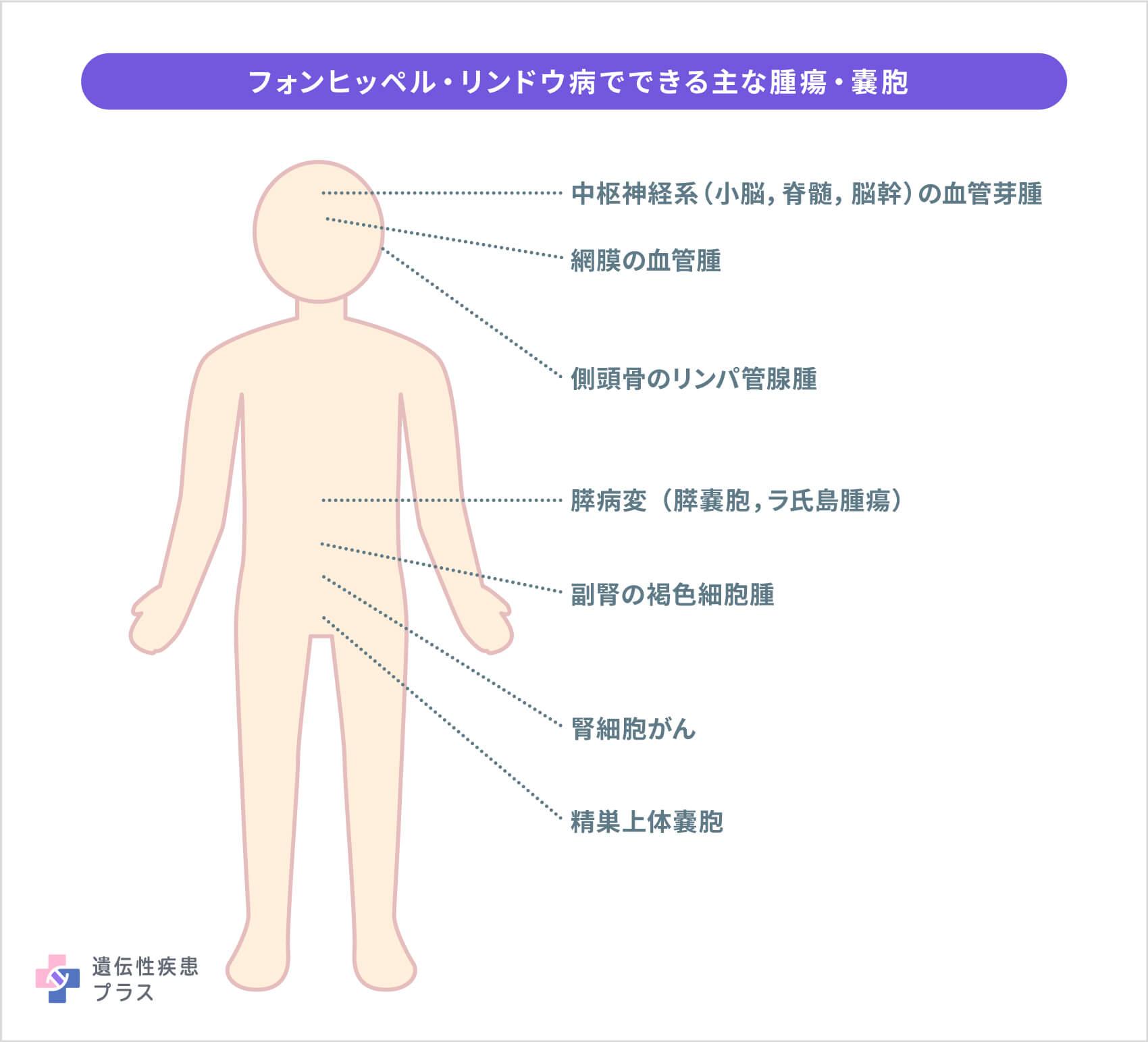 56 Vhl病 主な腫瘍
