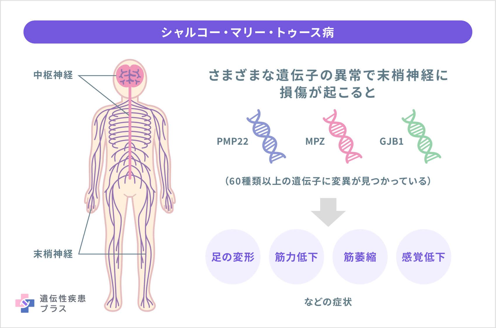 63 Cmt 末梢神経と症状