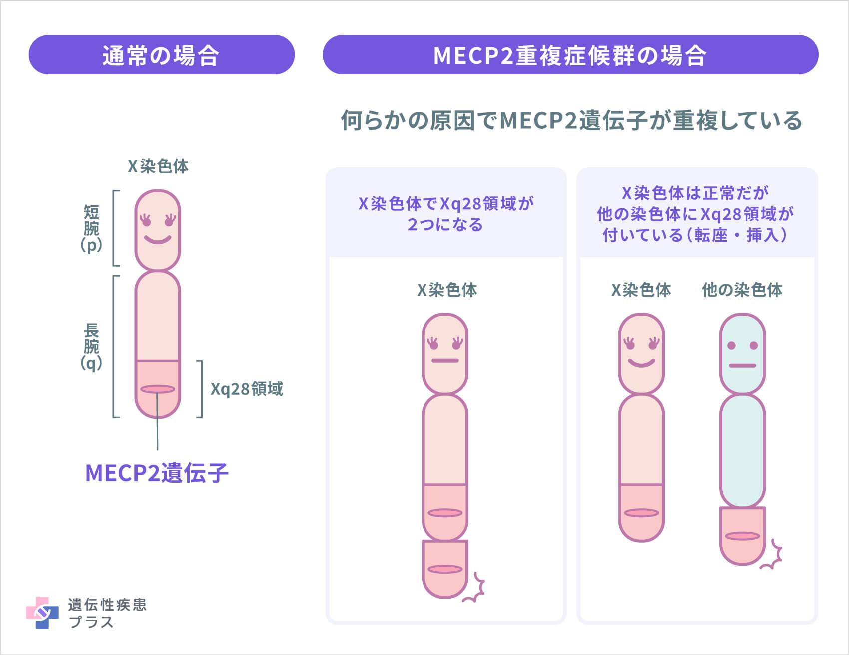 Mecp2重複症候群
